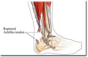 Achilles Tendon Pain Prevention and Recovery