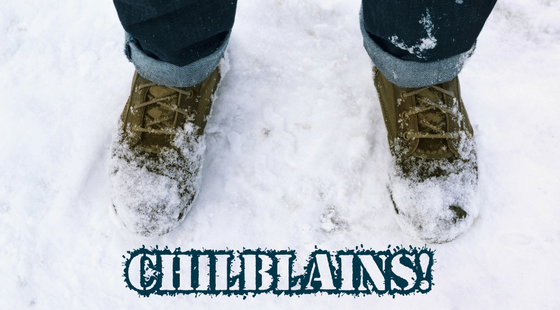 Frozen Feet in Snow - Chilblains!