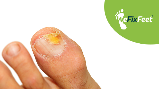 How can I treat a fungal nail infection?