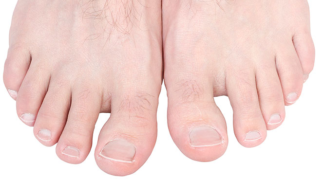 How to Easily Fix 6 Common Foot Problems