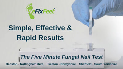 Take the effective Five Minute Fungal Nail Test in-clinic