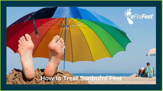 How to Treat Sunburnt Feet