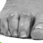 Claw toe is a toe that is contracted at the joints