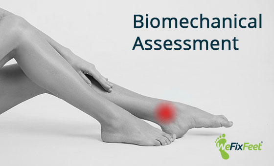 What is a biomechanical assessment?