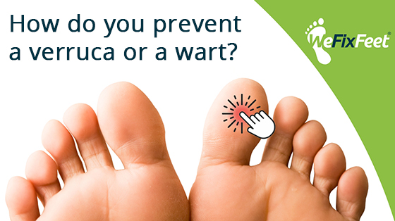 How do you prevent a verruca or a wart?
