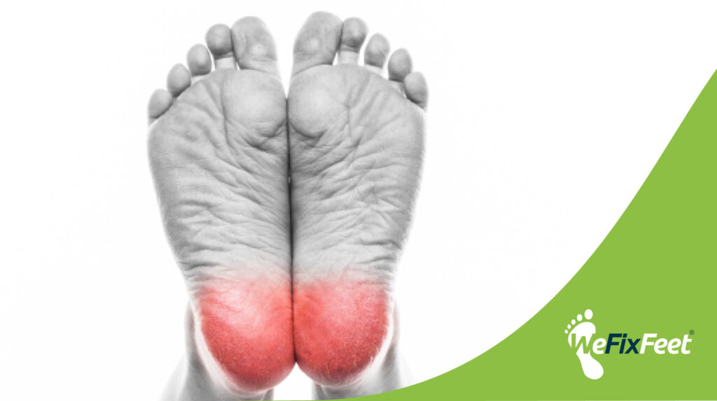 How can you prevent heel pain?